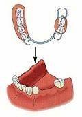 歯周病・予防歯科