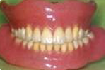超精密義歯